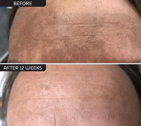 Dermaceutic Mela Cream Before After Imag