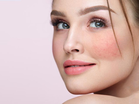 How to Manage Your Skin if You Have Rosacea