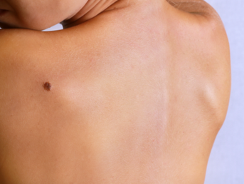 How Mole Mapping Can Prevent Skin Cancer; Our Guide