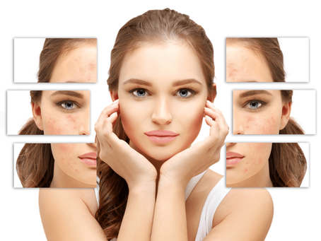 Acne Laser Treatments. Will They Really Work for Me?