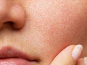 Big Facial Pores! Why This Happens and What Can Be Done?