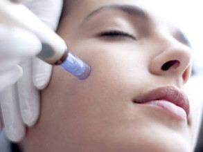 What You Should Know About Skin Needling Before You Have It Done