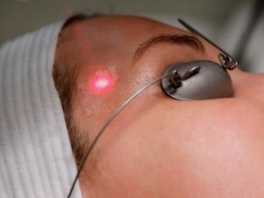Thinking of getting a Laser Micro-Peel?            Here's Everything You Need to Know