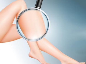 Laser Hair Removal. How It Works and Its Benefits