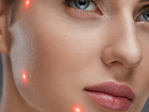Laser Treatment - Is It Really Effective Against Skin Conditions?