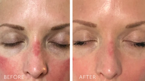 Tensage Intensive Serum 40, Post Procedure Result