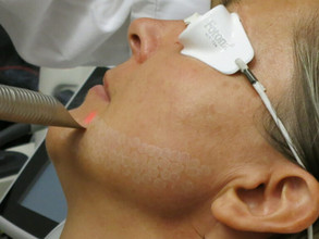 Why Erbium YAG Is the Best Method for Laser Treatments