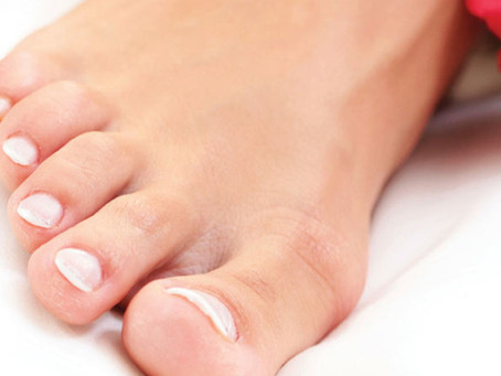 Different Types of Warts and How You Can Remove Them