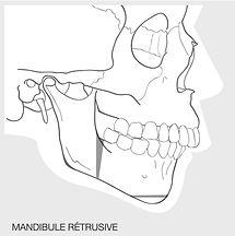 Osteotomie d'avancée mandibulaire