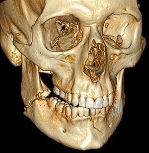 Fracture mandibulaire