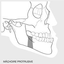Osteotomie de recul mandibulaire