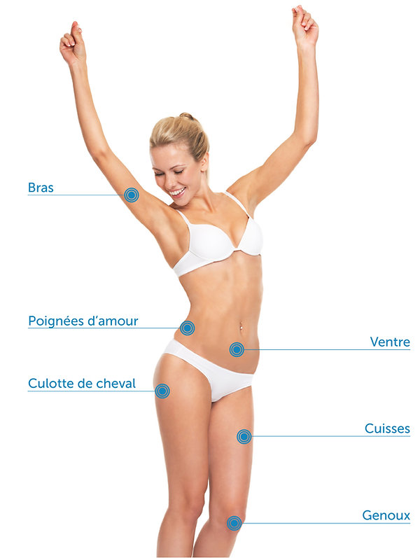 nice dermatologue laser esthétique botox cryolipolyse