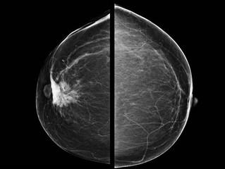 Cancers induits par les mammographies : comment en est-on arrivé là?