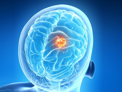 Beyin Tümörü Türleri