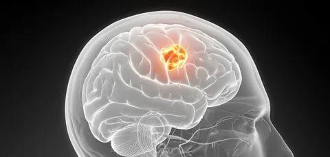 Kötü Huylu Beyin Tümörü ve Tedavi Yöntemleri