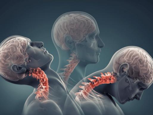 Boyun Kırılması Nedenleri, Çeşitleri ve Tedavisi