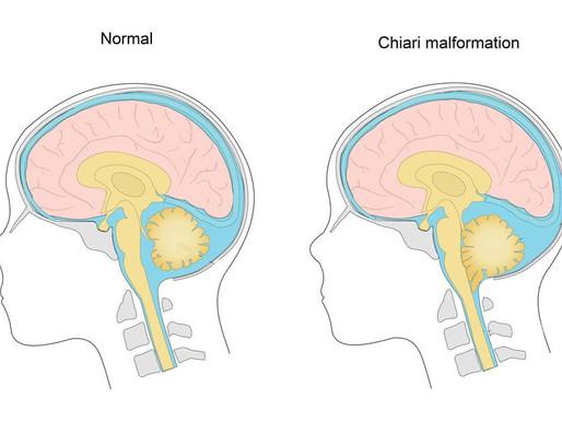 Beyincik Fıtığı-Sarkması (Arnold Chiari) Nedenleri, Belirtileri ve Tedavisi