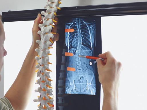 Omurga Tümörleri ve Tedavi Seçenekleri