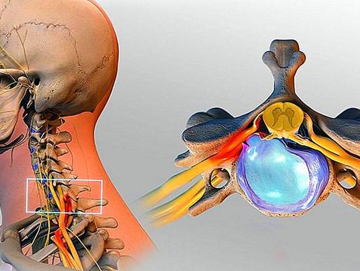 Boyun Fıtığı (Servikal Disk Hernisi) Nedenleri, Belirtileri ve Tedavisi