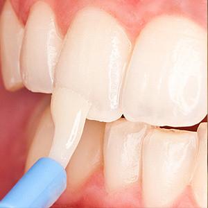 Fluorure mit sur une dent