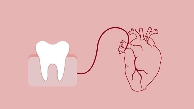 relation entre les maladies de gencive et les maladies du coeur