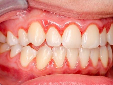 La gingivite et comment la traiter