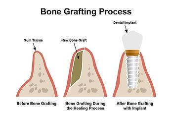 Bone_Grafting_Process_ceramic.jpg