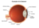 eye diagram with cataract