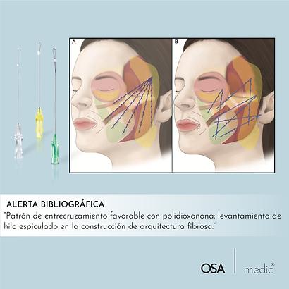 Polidioxanona-08.png