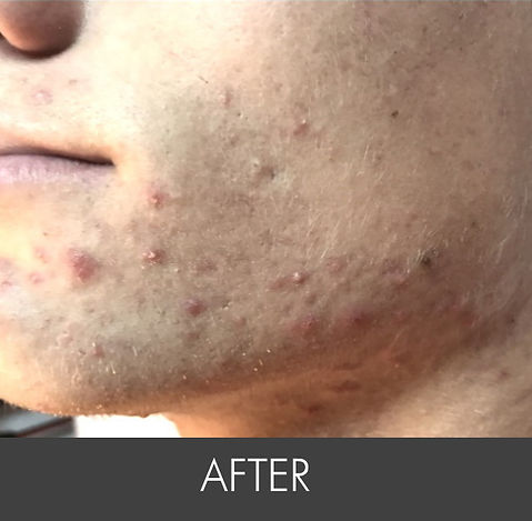 Teen Activer Acne_ Treatment-Left_side-