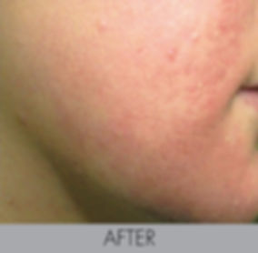 Sunsara_ Acne Treatment Female After.jpg