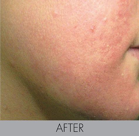 Sunsara_ Acne Treatment Female After.jpg