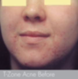 T-zone _____Acne Treatment with -microde
