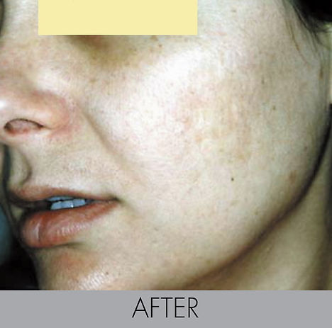Oliy Skin enlarged poresTreatment with -