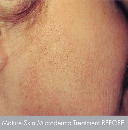 Mature skin  Treatment with -microdermab