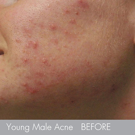 Young Male- Acne Treatment with -microde
