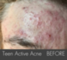 Teen Activer Acne_ Treatment- Forehad- B