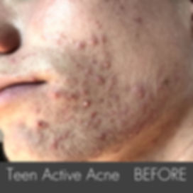 Teen Active Acne_ Treatment-Left_side- B