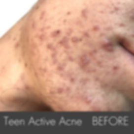 Teen Activer Acne_ Treatment-side- B1.jp