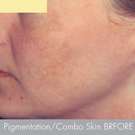 Pigmentation- Treatment with -microderma