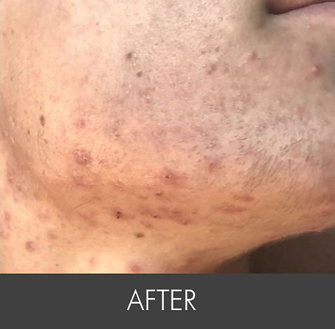 Teen Activer Acne_ Treatment-side- A1.jp