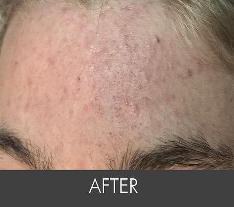 Teen Activer Acne_ Treatment- Forehad- A