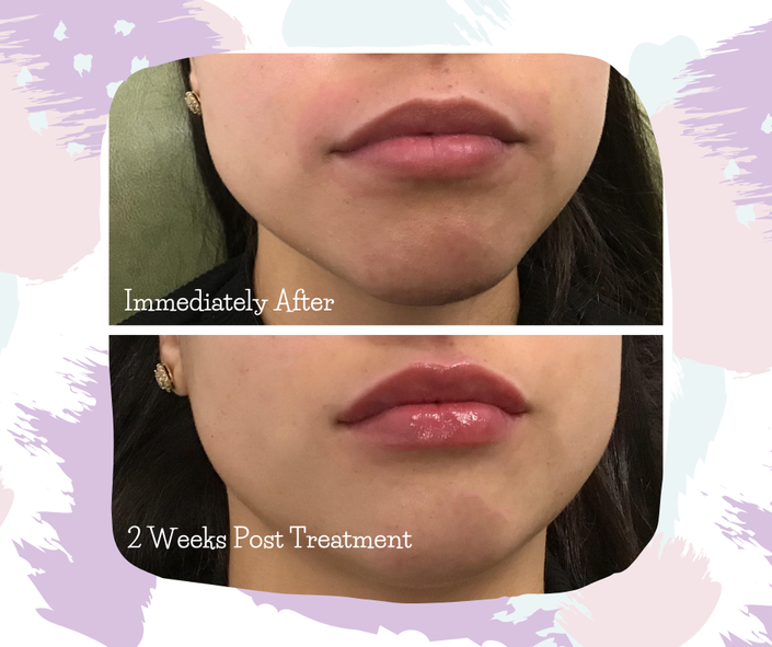 We performed a subtle lip enhancement on this patient. It's important to note that patients should expect mild bruising from lip fillers, as well as a few days of swelling. These symptoms are completely normal and all part of the process.