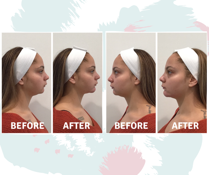 Chin contouring with 5 CCs of Juvederm Voluma XC to enhance the cheek area and lift and augment the chin profile (submentum) beautifully using Hyaluronic acid (HA).