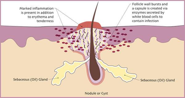 Egoderm Acne Treatment Los Angeles Face Reality Acne Nodule or Cyst