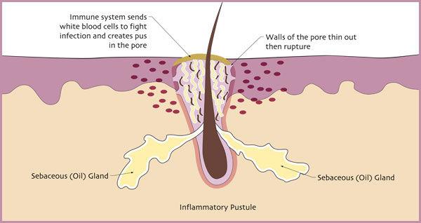 Egoderm Acne Treatment Los Angeles Face Reality Acne Inflammatory Pustule