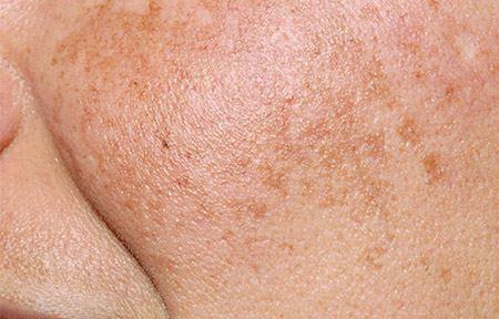 Egoderm Facial Spa & Skin Care Hyperpigmentation