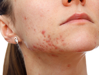 ACNE TREATMENTS: DO ACNE FACIALS WORK?