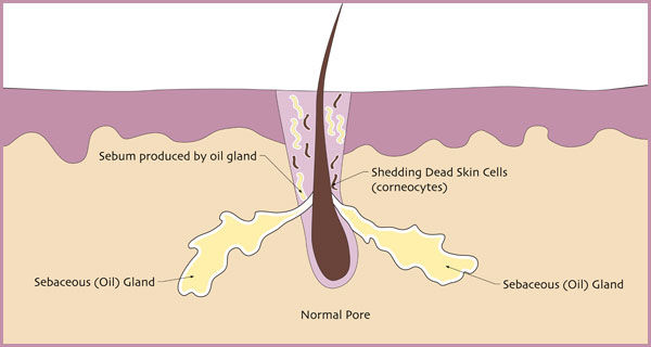 EGODERM acne treatment normal pore