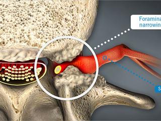 Foraminal Encroachment vs. Foraminal Stenosis